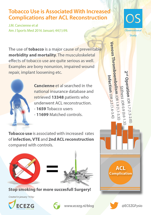 """Infographic created in January 2016 by ECEZG about """"Tobacco Use is Associated With Increased Complications After Anterior Cruciate Ligament Reconstruction """" by Cancienne et al (2016)"""