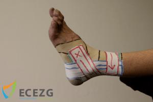 4. Start net voor het begin van het ligament, ga over het ligament heen en volg daarna de natuurlijke richting, eindigend op het proximale anker.
