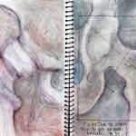 Illustratie van heupartrose