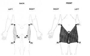 Lokatie van pijn bij heupartrose